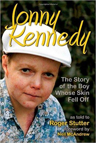 The Boy Whose Skin Fell Off