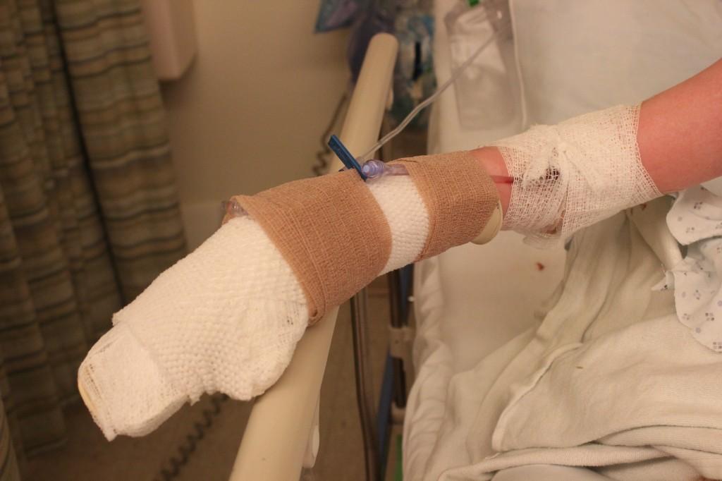 Post-surgery pics